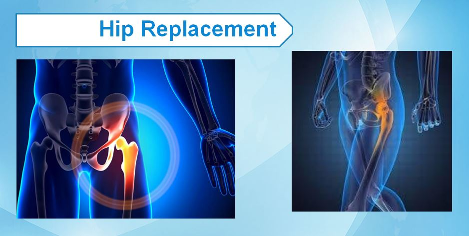 Hip Replacement2
