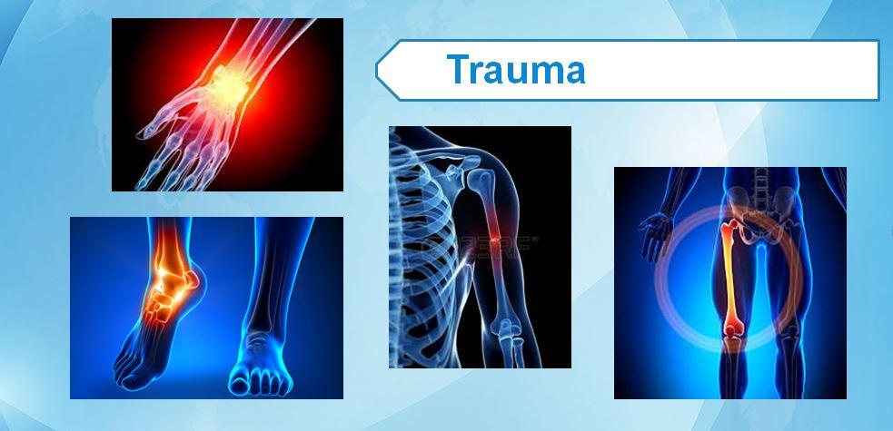 Trauma Fracture